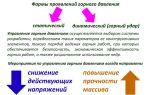 Горный удар. классификация горных ударов и их предотвращение